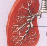 Симптомы и лечение бронхоэктазы легких